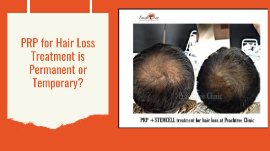 PRP for Hair Loss Treatment is Permanent or Temporary?Jaipur skincity