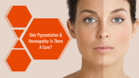Skin Pigmentation & Homeopathy: Is There A Cure?