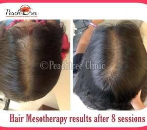 mesotherapy1-min